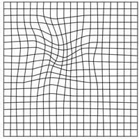 Pohja Amsler-testille, jossa ruudukko on vääristynyt ja keskellä oleva musta piste puuttuu.