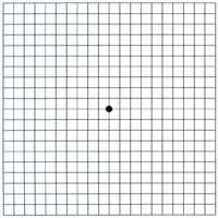 Pohja Amsler-testille, jossa on ruudukko ja keskellä musta piste.